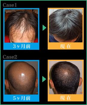 AGA薄毛治療の成功例